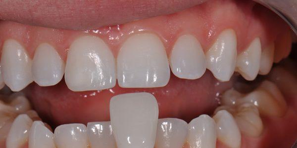 veneer dental