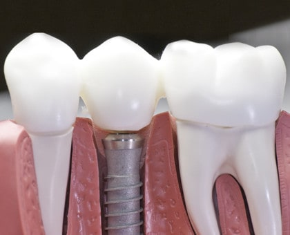 Quality Dental Implants