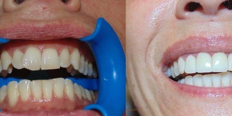 Veneers In Tijuana Mexico Dr Mexico Tijuana Dentist