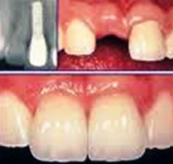 dental implants 2