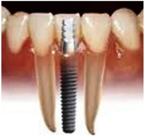 dental implants 6