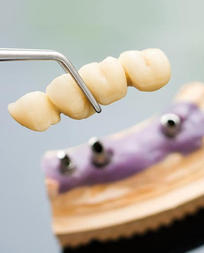 Dental Implant Head And Bridge