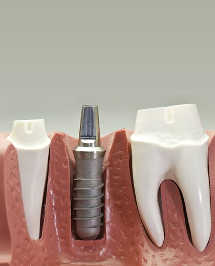 Dental implants have become the predominant choice for those who need replacement teeth