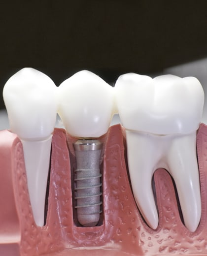 Quality Dental Implants